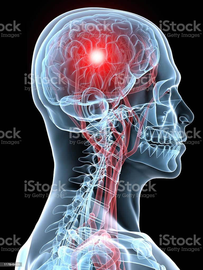 An X-ray image of a profile with a red brain stock photo