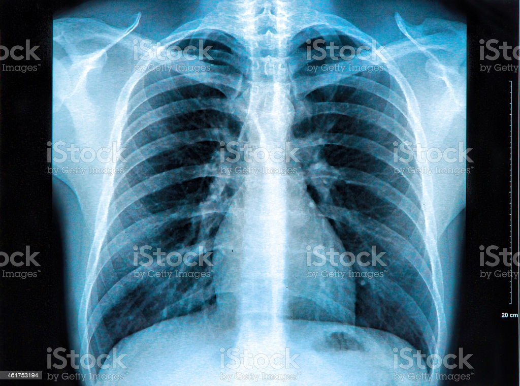 An Xray Of The Chest Showing The Lungs Heart And Ribs Stock Photo