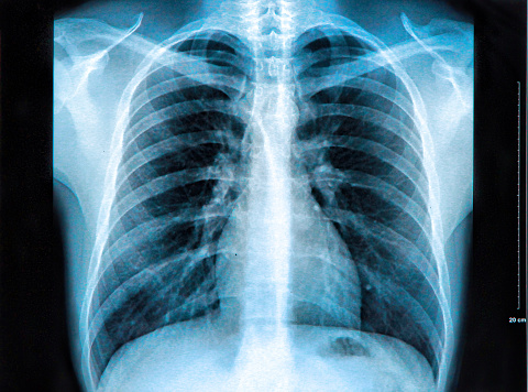 istock An X-ray of the chest showing the lungs, heart and ribs 464753194