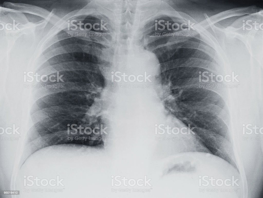 An X-ray of the upper torso showing lungs and ribs  stock photo