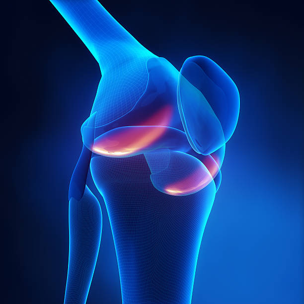 An X-ray vision of the knee with arthritis Knee Arthritis in x-ray view cartilage stock pictures, royalty-free photos & images