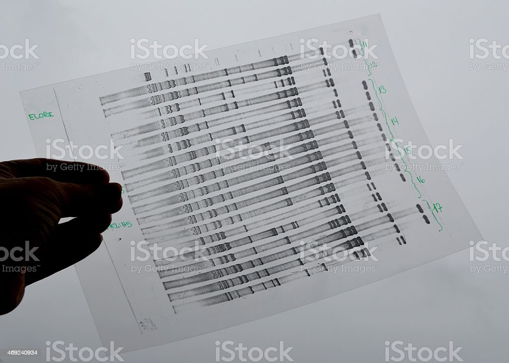DNA analysis in black and white stock photo