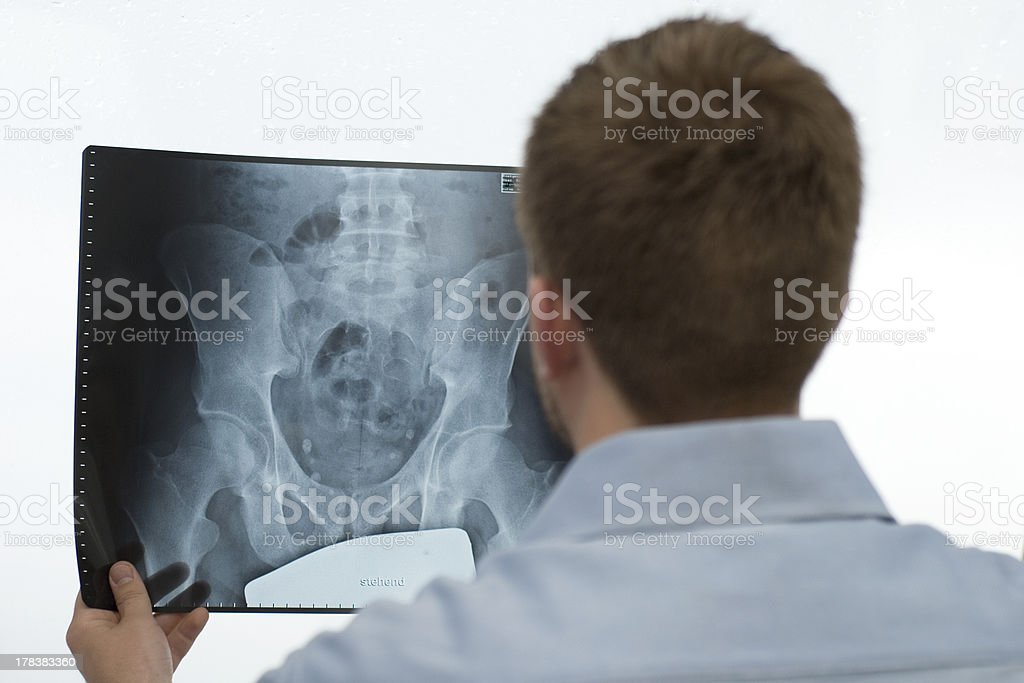 Analyzing an x-ray image stock photo