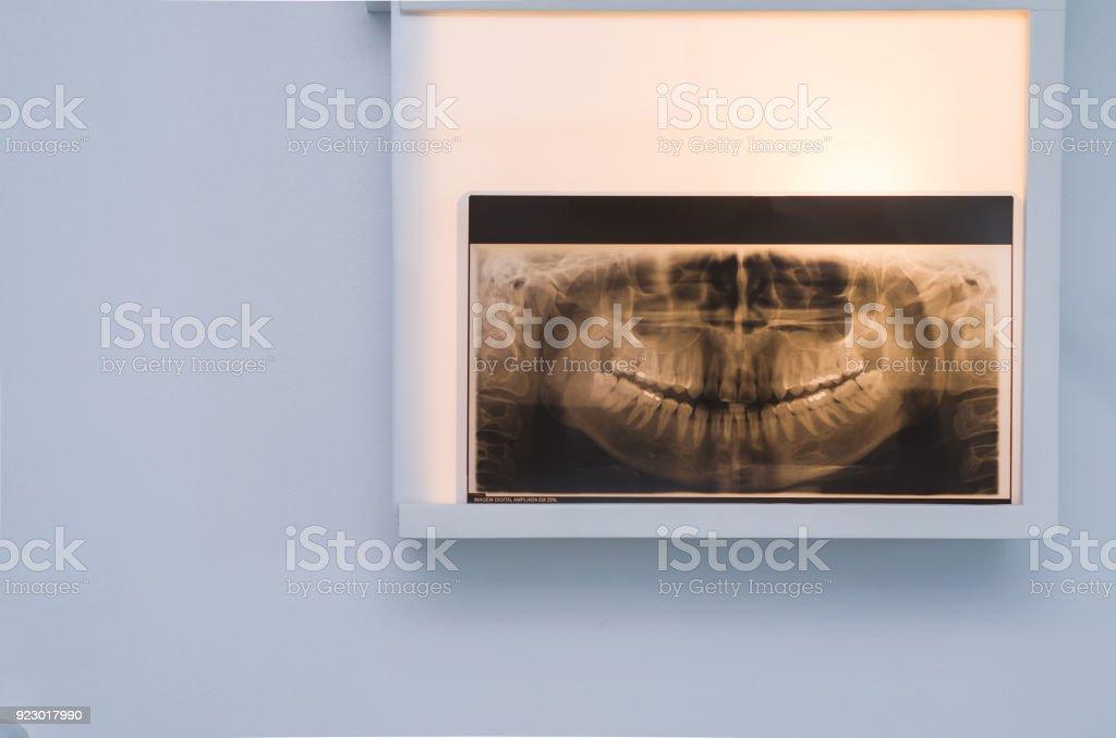 Análisis De Rayos X Dental - Stock Foto e Imagen de Stock | iStock