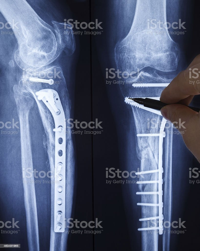 Analyzing the X-ray image of broken legs with osteosynthetic material stock photo