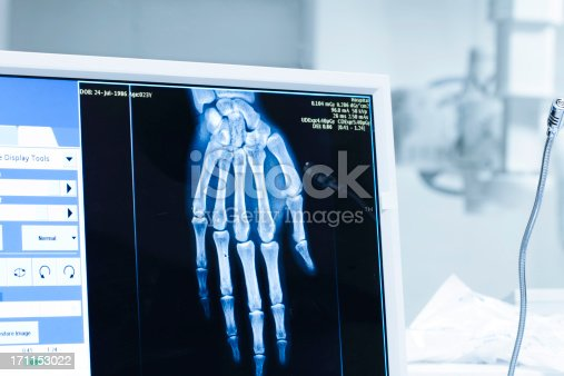 157642425 istock photo Analyzing x-ray or scann radiography in hospital 171153022