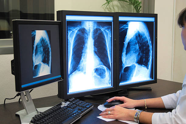 Analyzing x-ray or scann radiography stock photo
