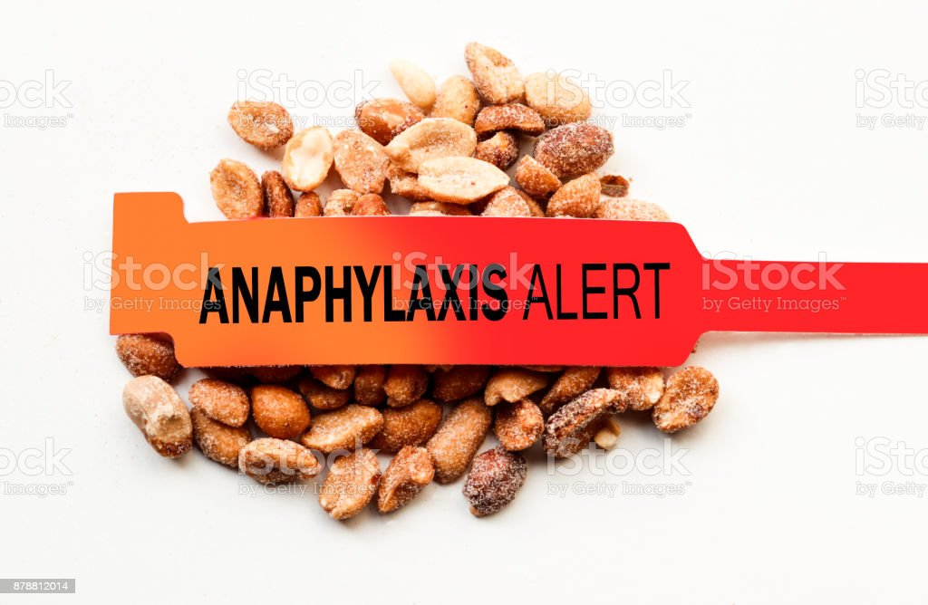 Anaphylaxis Alert Over Peanuts stock photo