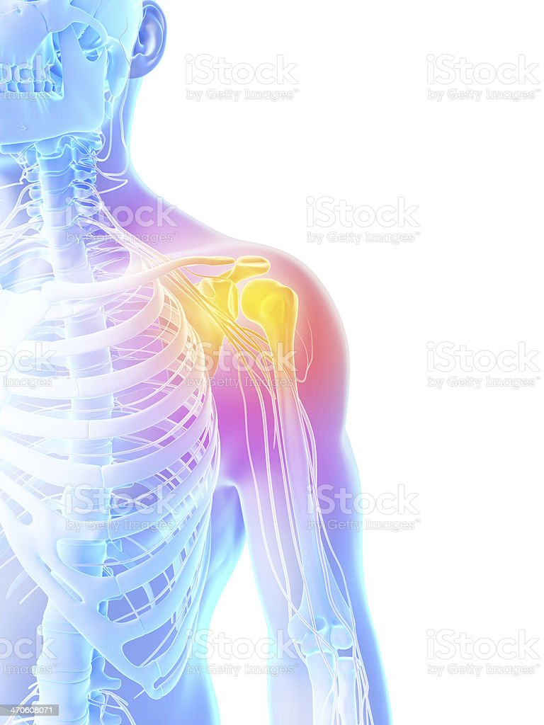 Anatomical diagram showcasing a shoulder in acute pain stock photo