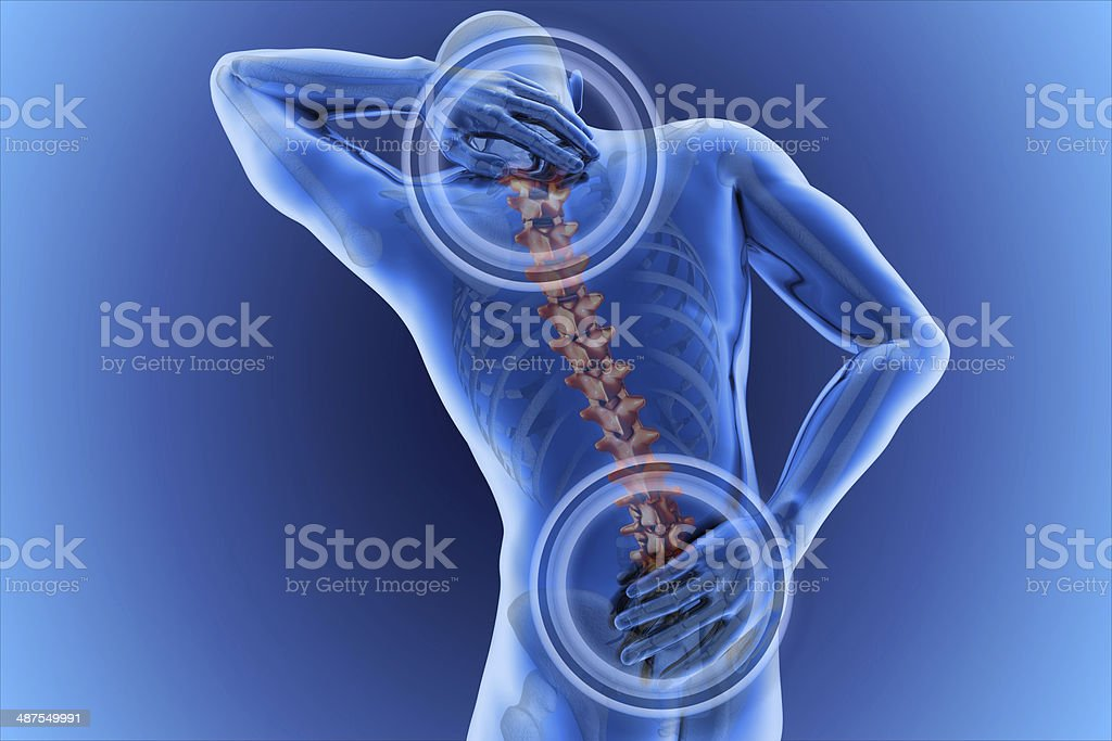 anatomical vision back pain stock photo