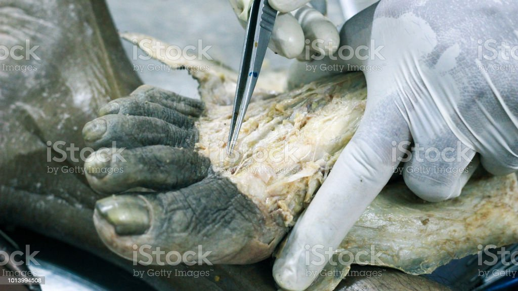 Anatomy Dissection Of A Cadaver Showing Dorsum Of Foot Using Scalpel ...