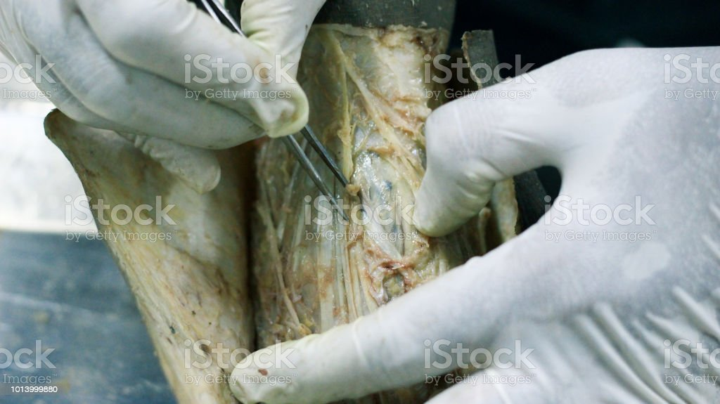 Anatomy Dissection Of A Cadaver Showing Dorsum Of Foot Using Scalpel