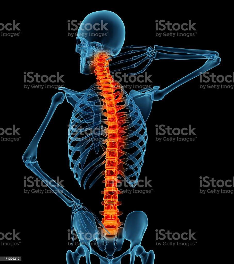 Anatomía De Un Hombre Mostrando Dolor De Espalda - Fotografía de ...