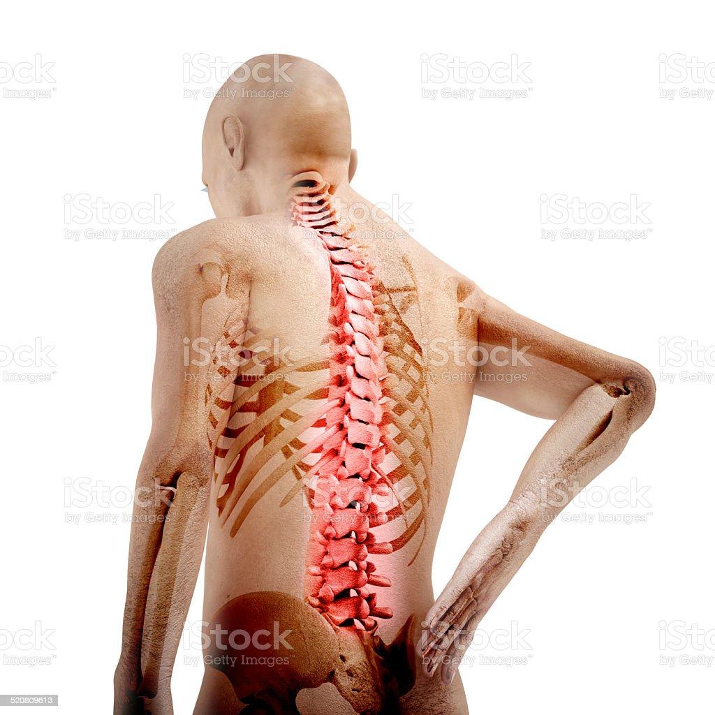 Fotografía de Anatomía De Un Hombre Mostrando Dolor De Espalda y más ...
