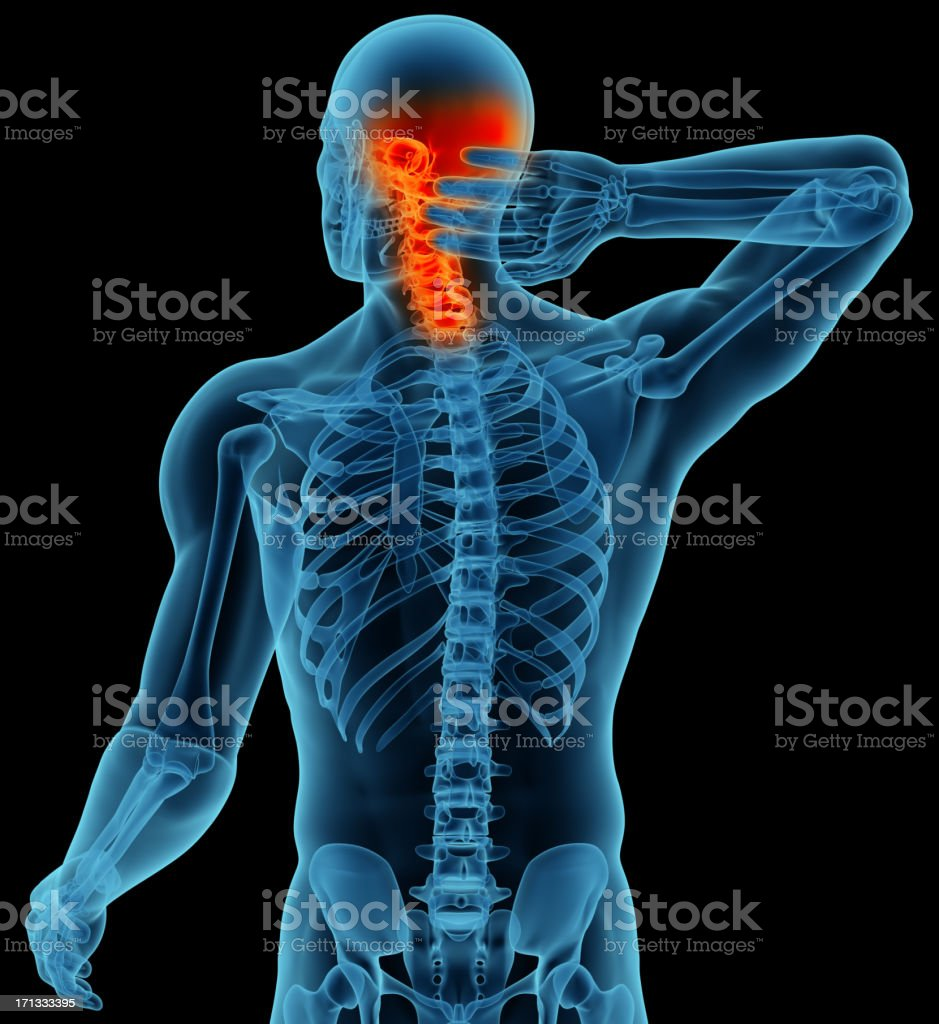 Anatomy Of A Man Showing Neck And Head Pain Stock Photo More