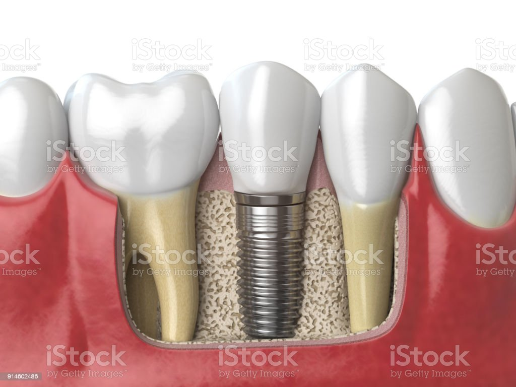 Anatomy of healthy teeth and tooth dental implant in human dentura. stock photo