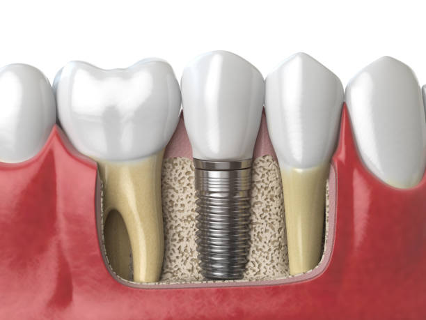 anatomy of healthy teeth and tooth dental implant in human dentura. - dental implants stock photos and pictures