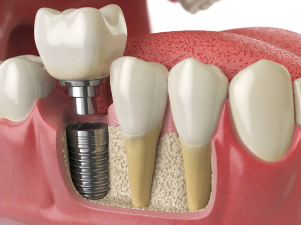 anatomy of healthy teeth and tooth dental implant in human denturra. - dental implants stock photos and pictures