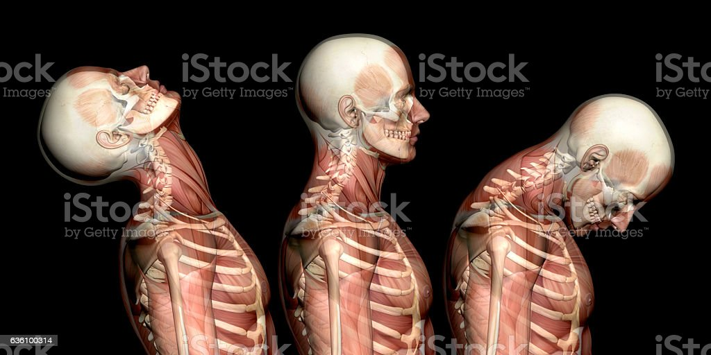 Anatomy of human body, showing neck injuries like whiplash effect stock photo
