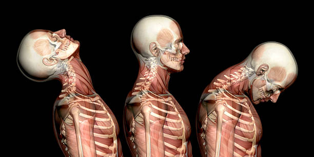 Anatomy of human body, showing neck injuries like whiplash effect Anatomy of human body, showing neck injuries like whiplash effect. With muscles and skeleton. Side view.  Isolated on white background. Great to be used in medicine works and health. spine body part stock pictures, royalty-free photos & images