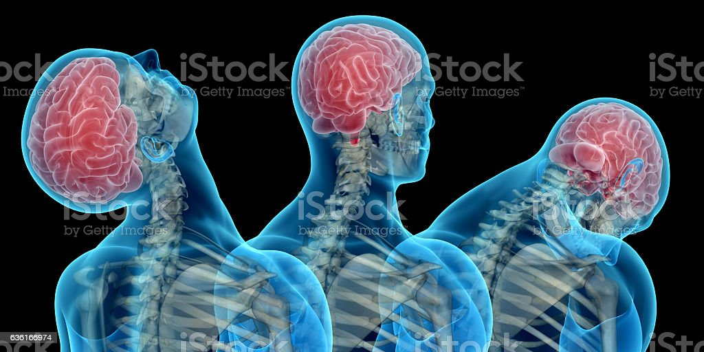 Anatomy Of Human Body Showing Neck Injuries Like Whiplash Effect