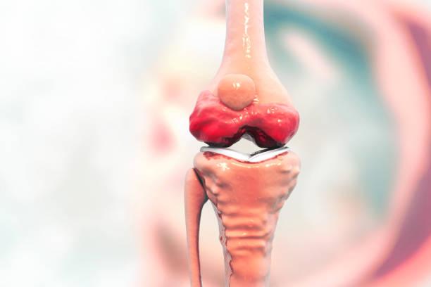 anatomy of human knee joint - menisco foto e immagini stock