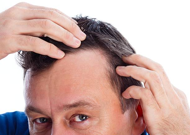 Androgenic Alopecia – Foto