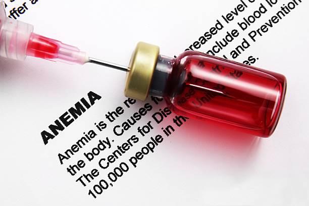 anemia - anemia foto e immagini stock