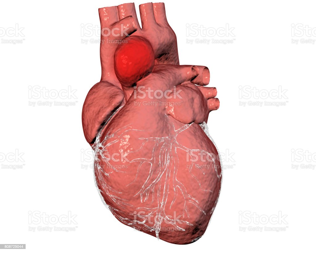 Aneurism of ascending aorta stock photo
