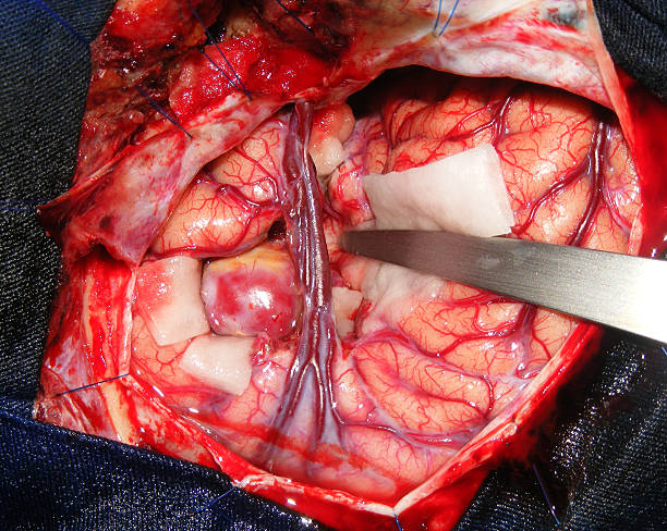 Aneurysm surgery in the brain stock photo