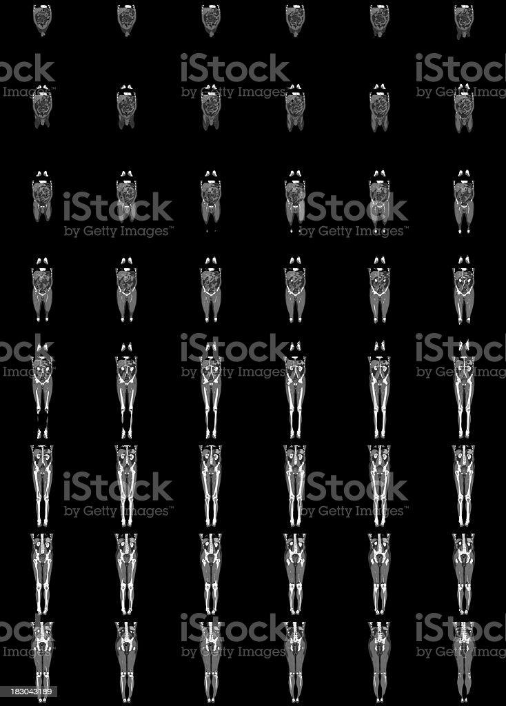 Un angiograma Runoff - foto de stock