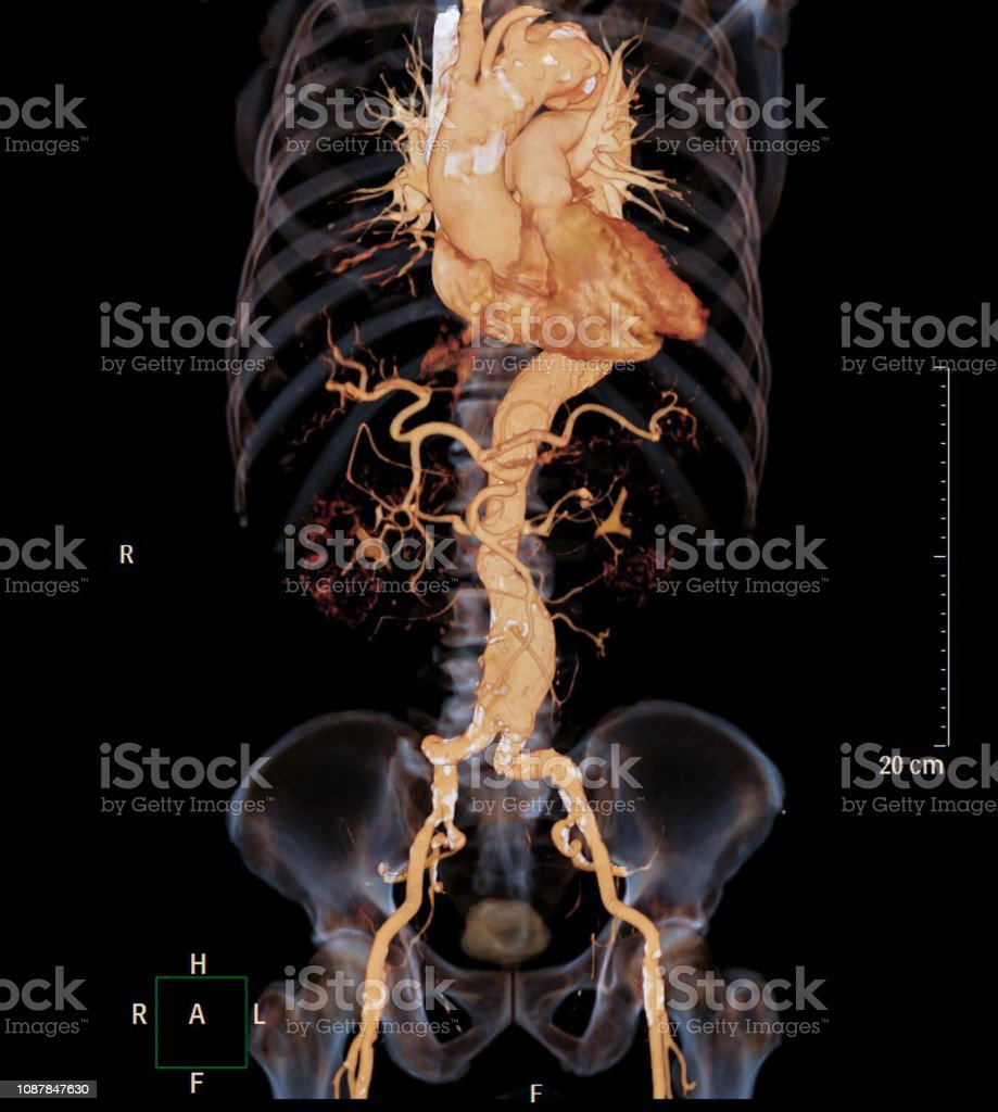 CT angiography of abdominal aorta 3D rendering image with x-ray image show aneurysm of abdominal aorta. stock photo