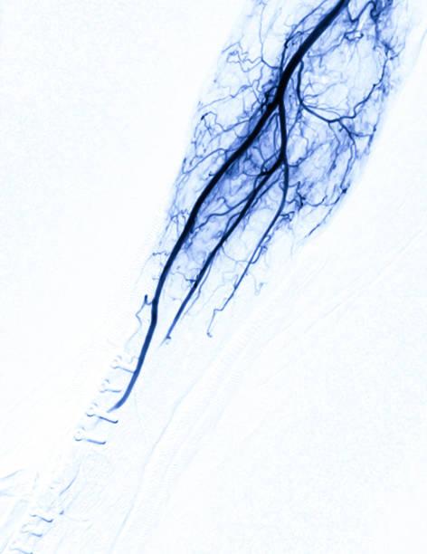 Angiographie der brachialen Arterie oder fluoroskopische Bild von Vessel in dem Arm auf weißem Hintergrund im Interventionsradiologie-Raum isoliert. – Foto
