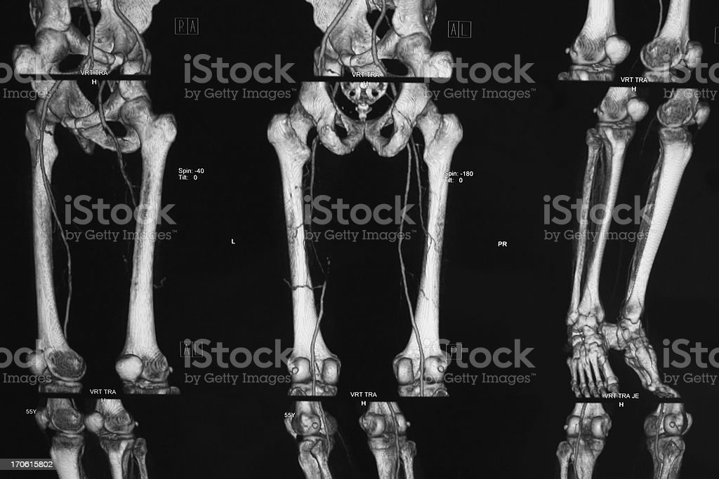 CT angiography of lower limb...Peripheral artery occlusive disease CT angiography of lower limb..artery occlusive disease Arteriogram Stock Photo