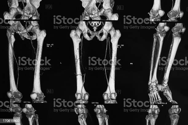 Ct Angiography Of Lower Limbperipheral Artery Occlusive Disease Stock Photo - Download Image Now