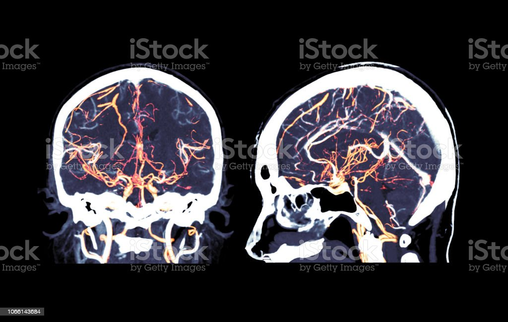 CT angiography of the brain coronal and sagittal view / 3D Rendering image  showing vessels in human head. stock photo
