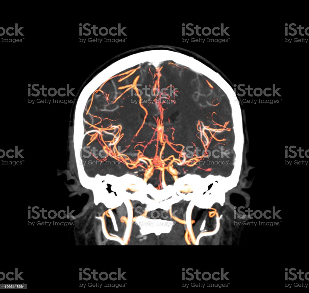 CT angiography  of the brain coronal view / 3D Rendering image  showing vessels in human head. stock photo