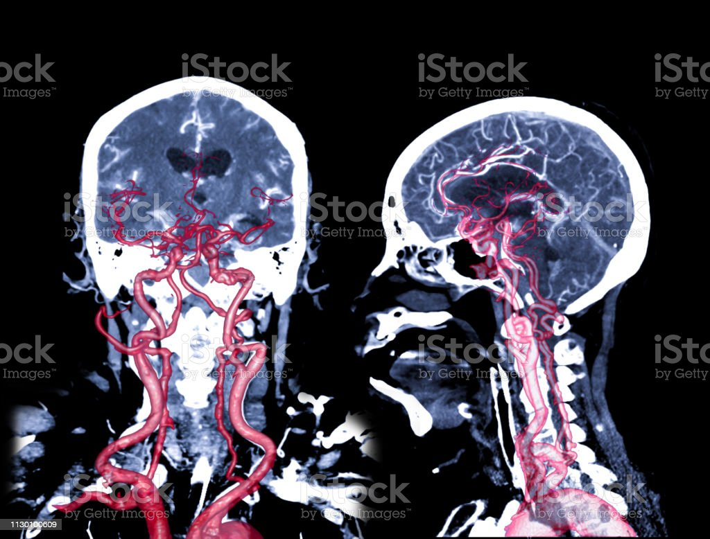 CT angiography of the brain or CTA brain comparison Coronal and Sagittal view 2D and 3D Rendering image fusion . stock photo