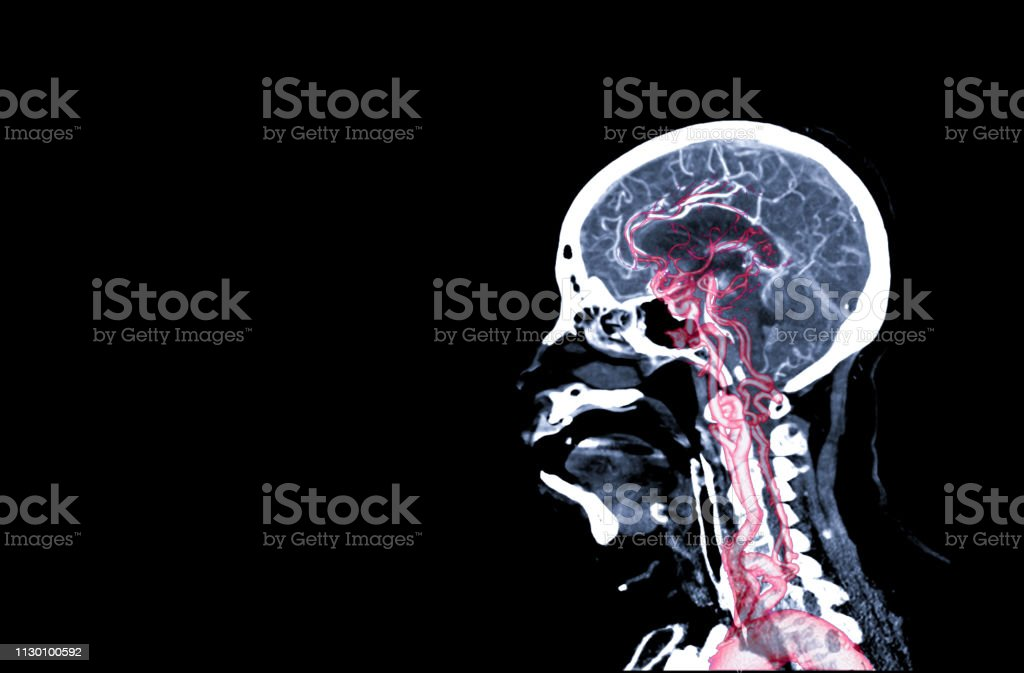 CT angiography of the brain or CTA brain Sagittal view. stock photo