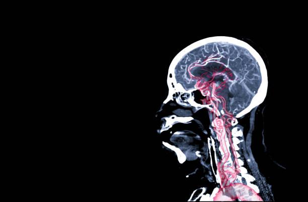 CT-Angiographie des Gehirns oder des CTA Gehirn sagittaler Ansicht. – Foto