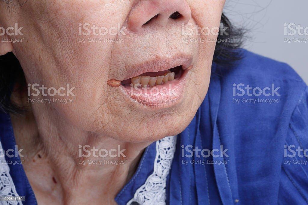 Queilite angular inflamação dos lábios - Foto de stock de 70 anos royalty-free