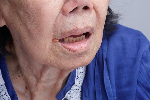 Foto de Queilite Angular Inflamação Dos Lábios e mais fotos de stock de 70 anos