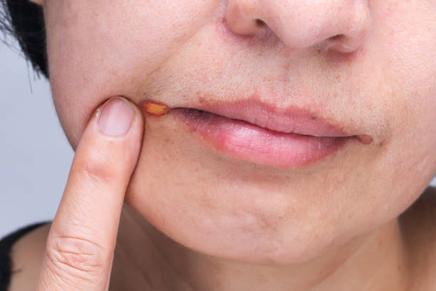 angular cheilitis  inflammation of the lips - defection stock photos and pictures