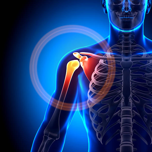 Animated image of a fractured shoulder scapula clavicle stock photo