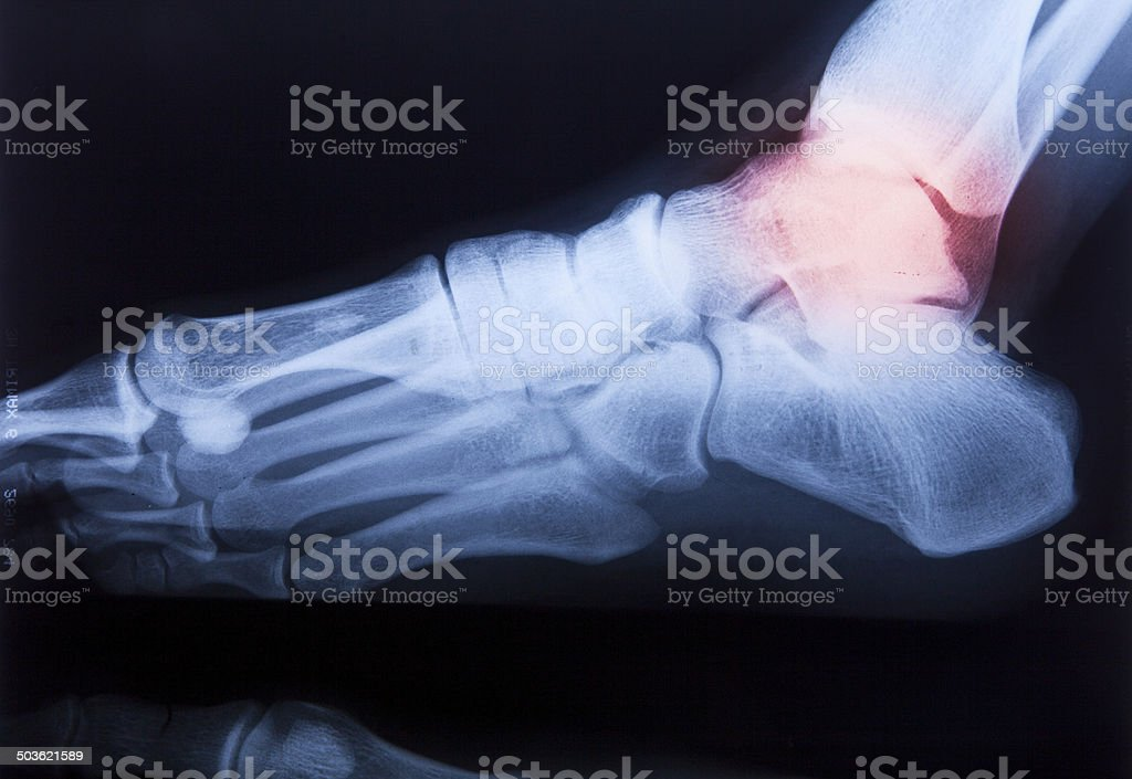 Ankle Feet Knee Joint Pain Human Xray Mri Film Stock Photo & More ...