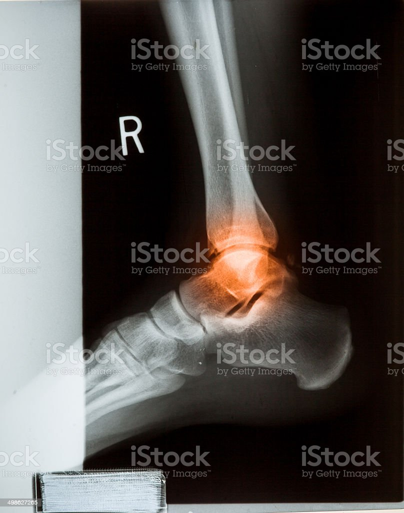Ankle Feet Knee Joint Pain Xray Mri Photo Film Stock Photo & More ...