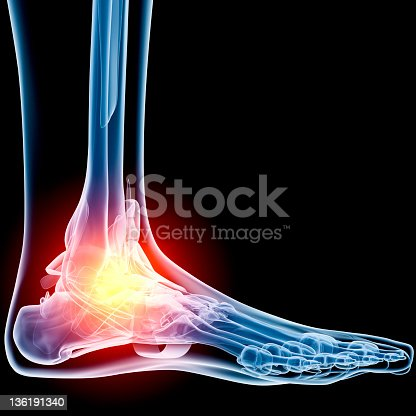 istock Ankle in pain x-ray 136191340