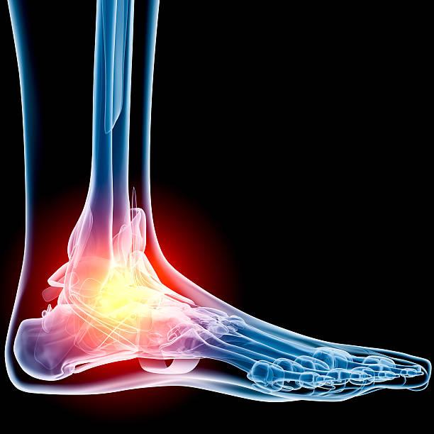 radiografia dolore alla caviglia - caviglia foto e immagini stock