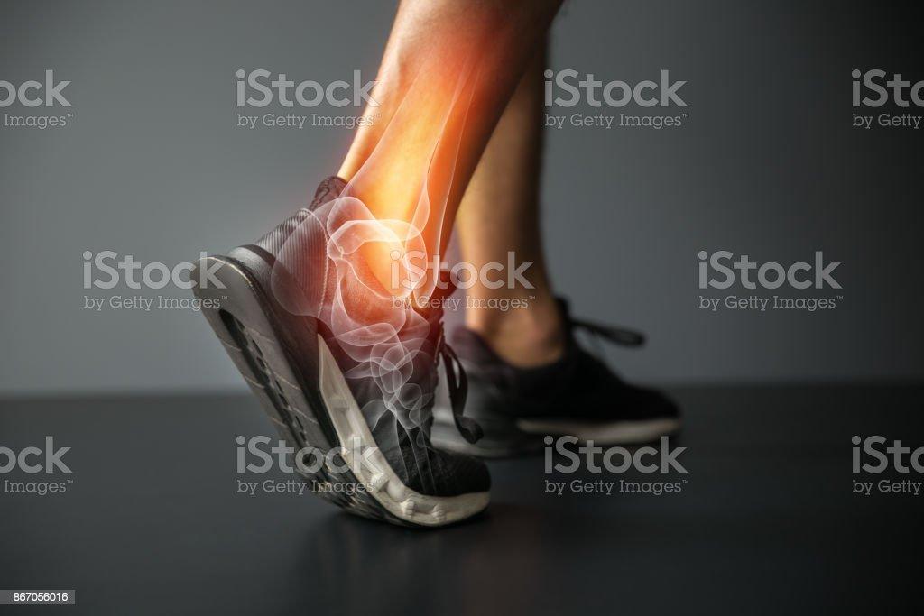 Lesión de tobillo y lesiones de articulaciones dolor-deportes - foto de stock