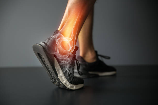 ankle injury and joint pain-sports injuries - dolore fisico foto e immagini stock